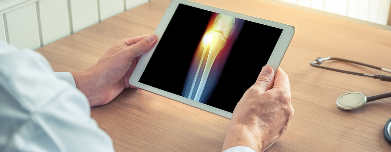 Total Joint Replacement Bullhead City, AZ